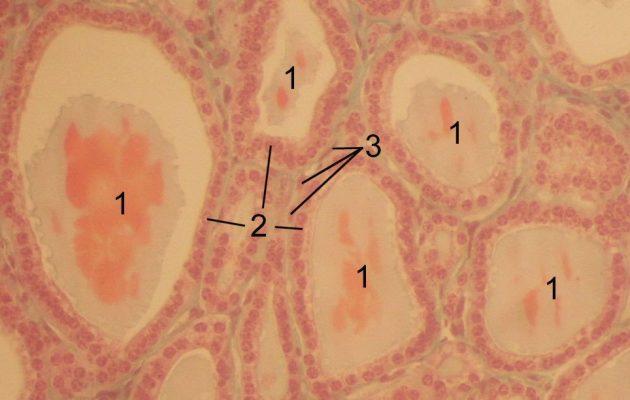 Зоб щитовидной железы: симптомы, признаки, лечение