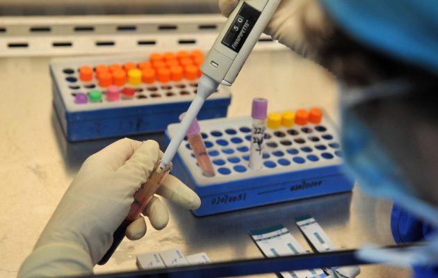 Кровь на гормоны: анализ, норма, диагностика, расшифровка