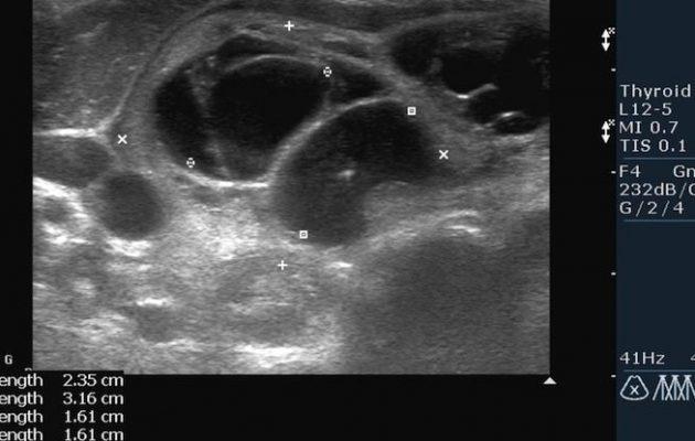 УЗИ щитовидной железы: норма, отклонения, расшифровка