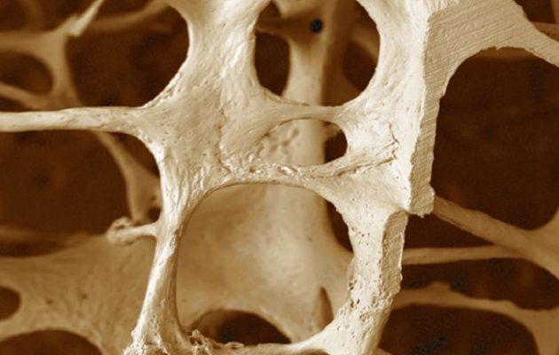 Гипопаратиреоз: что это такое, симптомы, лечение, диета